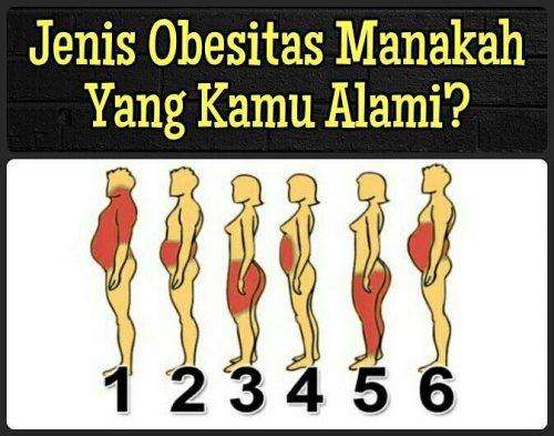 6 Jenis Obesitas (Memahmai dan mengenali Diabetes Melitus)
