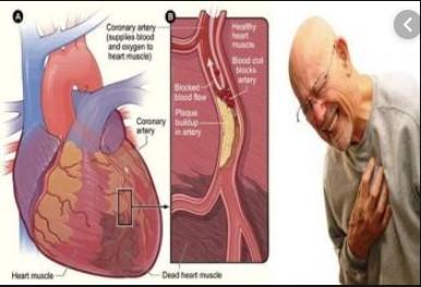 Gambar case Jantung Koroner Sumber Kompasiana